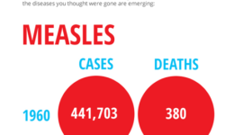 measles and mumps